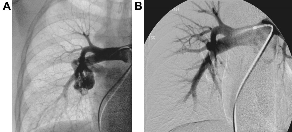 Big PAVM before (left picture) and after (right picture) embolization with occlusion of the feeding artery to the sac. Normal vessels are spared. Atlas of Science