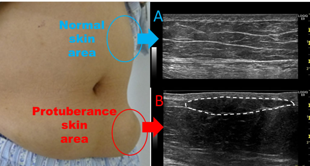 Ultrasound image of normal and protuberance skin areas. Atlas of Science