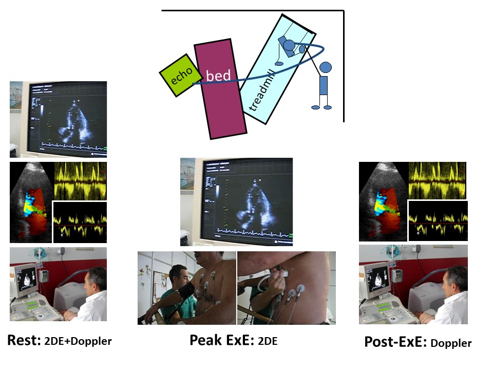 Exercise echo: a diastolic & systolic function evaluation test. Atlas of Science