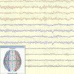 AoS. EEG Reactivity in Coma.