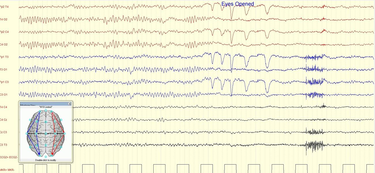 Atlas of Science. EEG Reactivity in Coma.