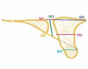 Atlas of Science. Anatomic variation of the nasopalatine canal among dentate