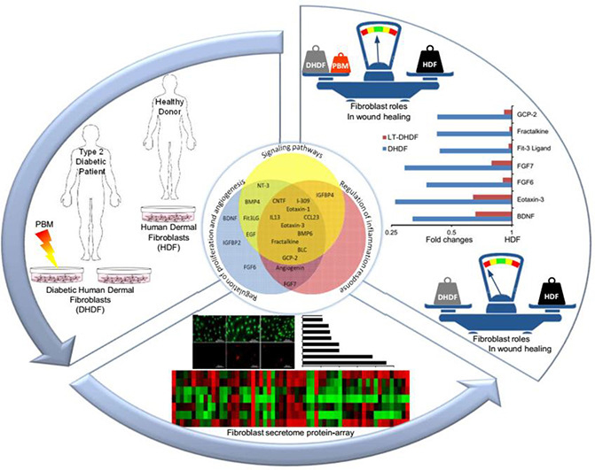 Atlas of Science. Why Photobiomodulation therapy is helpful for diabetic wound healing.