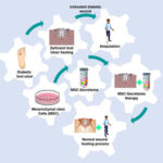 AoS. The Roles of Mesenchymal Stem Cells Secretome in Diabetic Wound Healing.