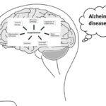 AoS.The suitability of scopolamine as an Alzheimer's model