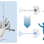 AoS. Intracranial injections and animal models: towards understanding and treating human disease